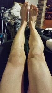 My leg at its worse