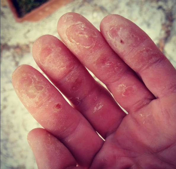 Brian's Fingers